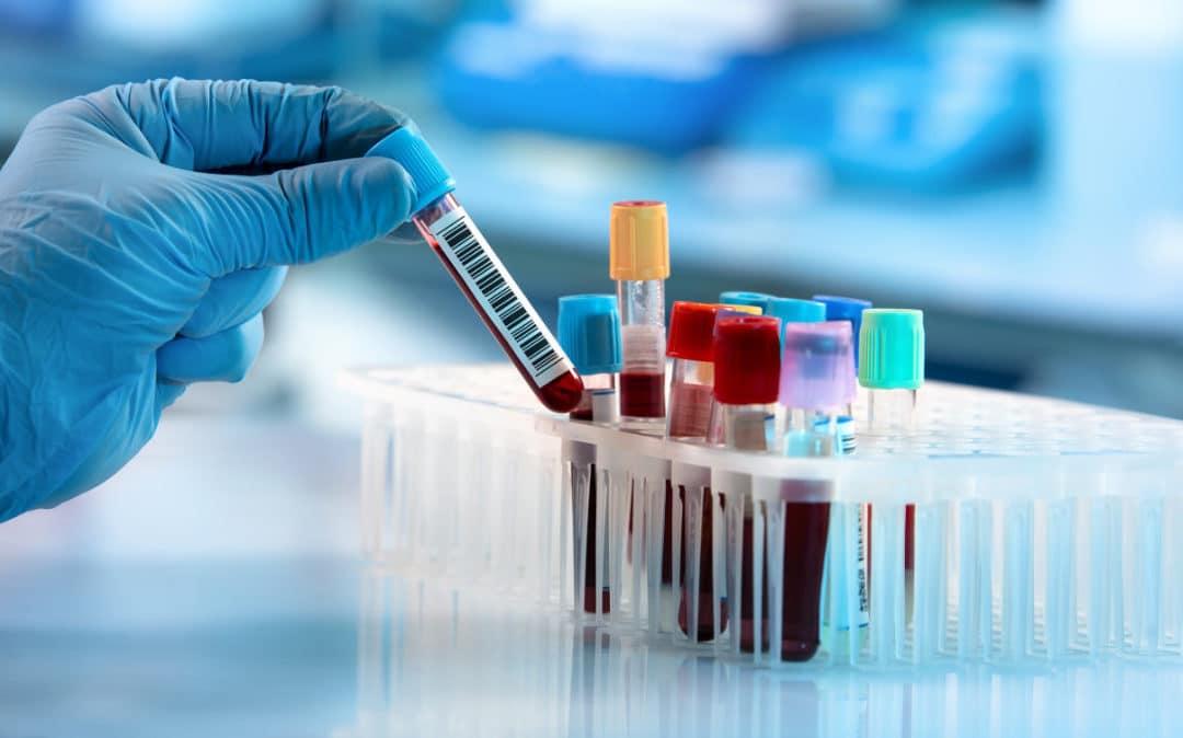 Studie: Propionsäure kann Verlauf von MS positiv beeinflussen